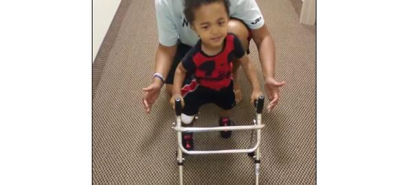 「やった!やった!」右足を失った2歳の少年が初めて歩いた日