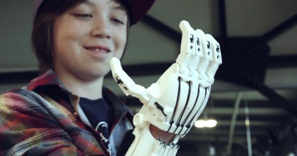 【3Dプリンターで実現】子供たちが喜ぶスーパーヒーロー仕様の義手