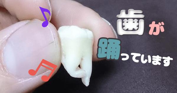 歯アイキャッチ
