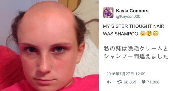 シャンプーと除毛クリームを間違えた女性、見事なツルツルヘアーになってご立腹