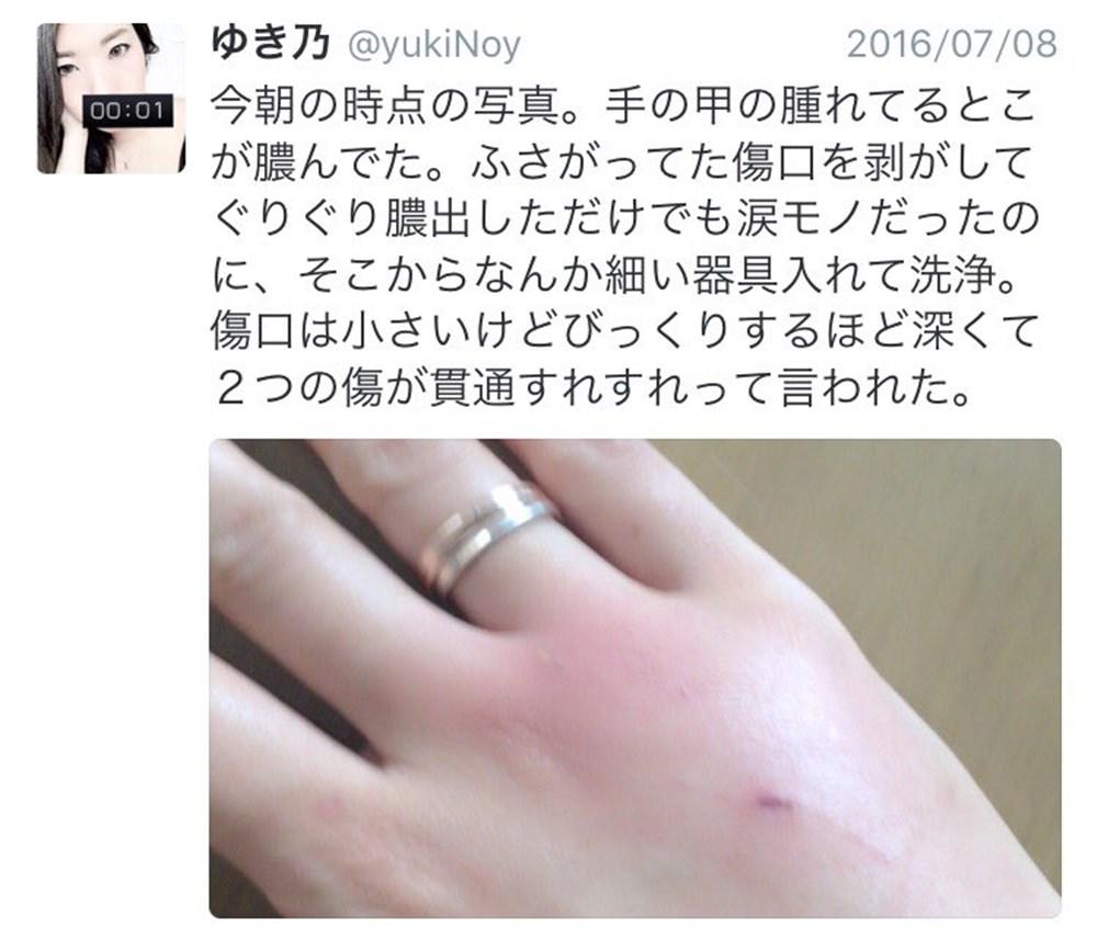 猫に噛まれて患部が腫れたら要注意!実は身近なパスツレラ