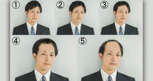 【1~5段階に分けて調査】女性はどのレベルの薄毛までセーフか?
