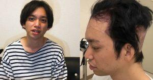【自毛植毛定期レポート】ハゲに悩んで自毛植毛をしてみた(植毛から2週間)