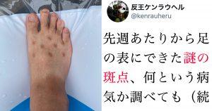 【病名わからず…】足の甲に広がった「謎の斑点」の原因に笑ったw